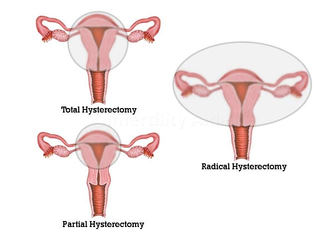 Kinds of hysterectomy