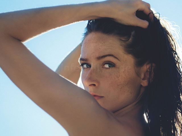 Oily skin and acne - PCOS